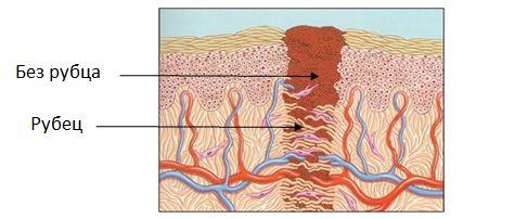 Здоровая кожа или несколько советов,  как убрать рубцы от прыщей на лице