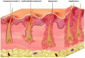 Почему в носу растет фурункул: как лечить и распознать