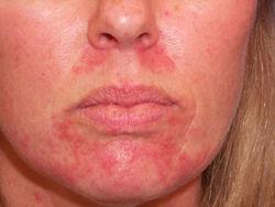 Кожный клещ на лице: симптомы, как не заболеть?