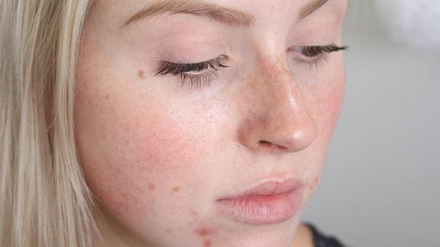 Левомицетиновый спирт от прыщей – его эффект на кожу