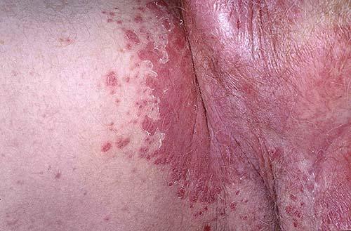 Опасно ли появление гнойных прыщей на интимном месте у женщин?