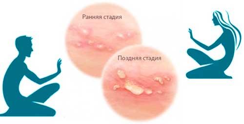 svamp i forhuden