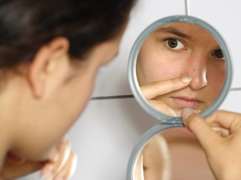 Прыщи на носу у женщины: что делать?