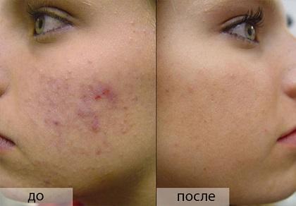 Как убрать следы от прыщей на лице и почему они появляются?