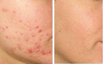 Можно ли прижигать прыщи йодом на лице: польза или вред?