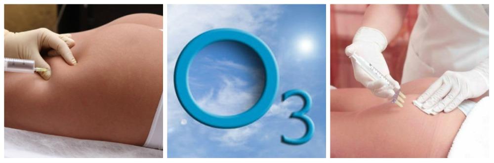 Озонотерапи