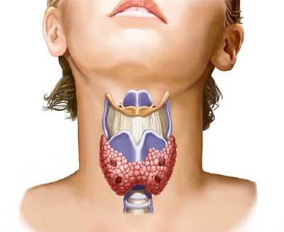 Появление прыщей из-за дисфункции щитовидной железы