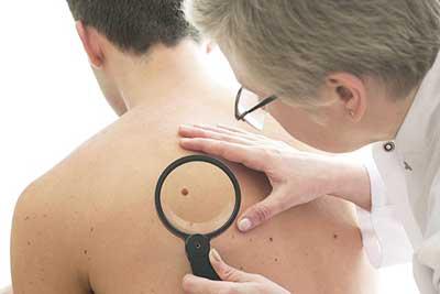 Прыщи на спине: причины появления у мужчин и методы лечения