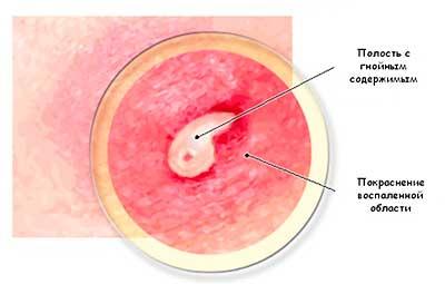 Фурункулы и нарывы: симптомы и эффективное лечение