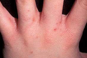 Прыщи на руках у ребенка, их виды и качественная профилактика