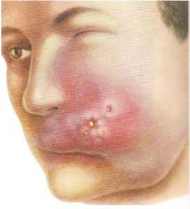 Фурункул на щеке: его причины, традиционное и народное лечение