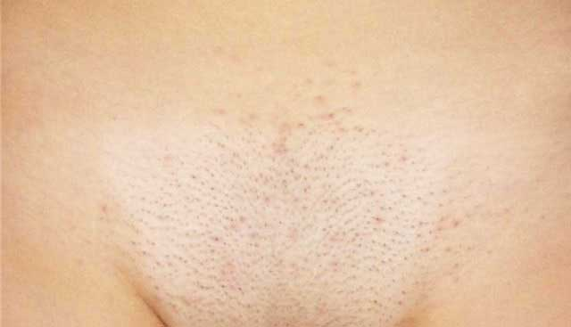 Прыщи после бритья в интимной зоне: современные методы лечения