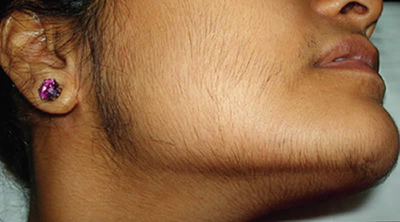 повышенная волосатость