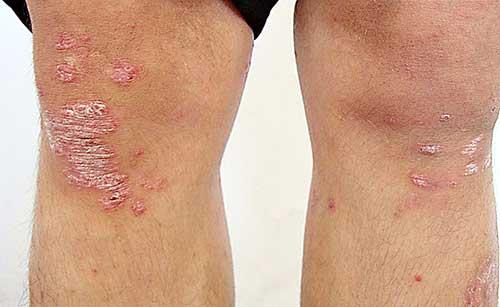 Псориаз на коленях