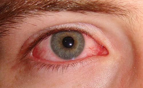 Конъюнктивит на глазном яблоке