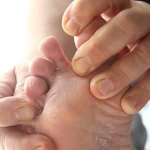 Грибок на пальцах ног
